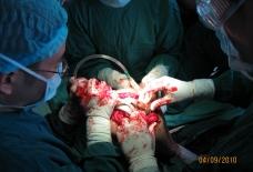 我院成功开展人工全膝关节置换手术